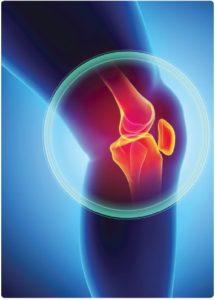 OA, osteoarthritis