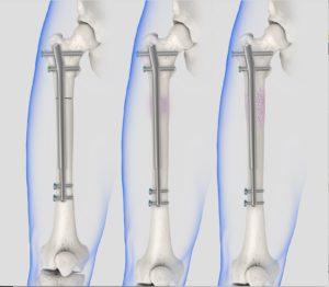 PRECICE Intramedullary Lengthening System
