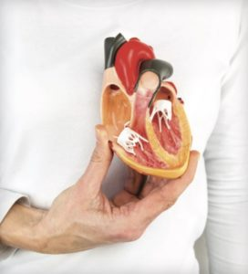 Women and Heart Attacks